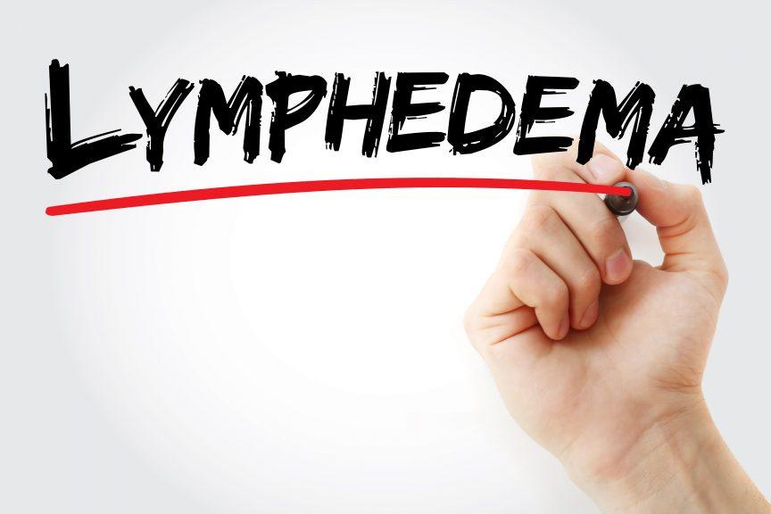 lymphedema 101