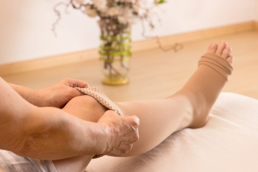 Woman putting on compression stocking