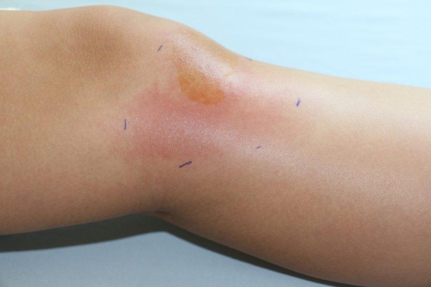 Leg with cellulitis